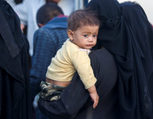 Guerra in Yemen: i bambini i più colpiti